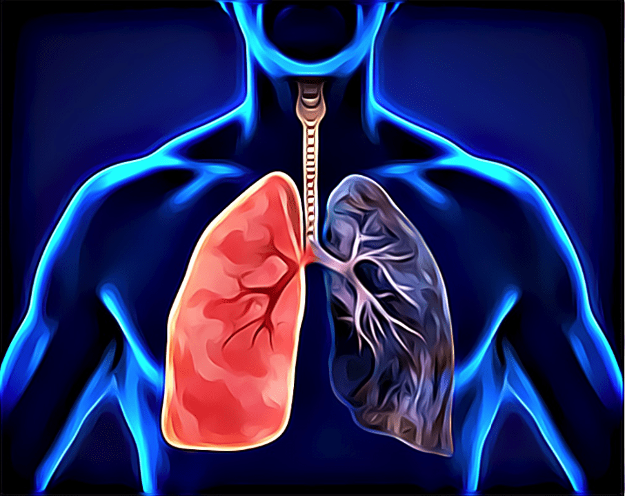 Symptoms of Lung Carcinoma (Lung healthcare)